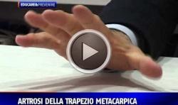 Artrosi della Trapezio Metacarpica - Intervista Rete8VGA