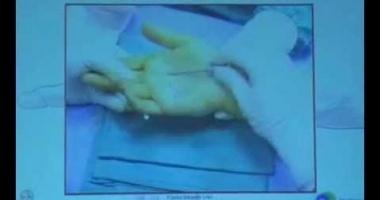 """Презентация """"Методика эндоскопического лечения синдрома щёлкающего пальца"""" - Гонконг, 2008 г."""